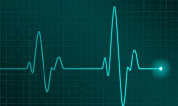 Heart monitor diagram